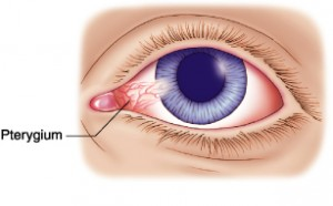 Ways to Prevent a Pterygium